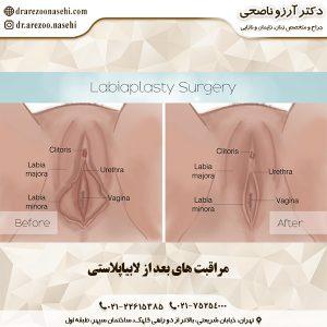 مراقبت های بعد از لابیاپلاستی